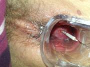 Mirena Spirale ziehen removal IUD IUP entfernen