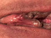 Both holes get stimulated