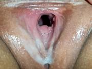 Huge creampie load dripped