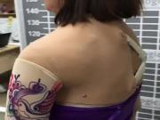 mature arm amputee