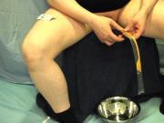 Fr22 catheter insertion