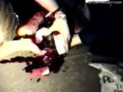 Guy's Head Bleeding From Huge Open Wound