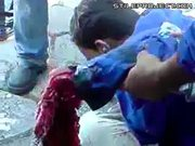 Super Gross - Worker loses hand in hydraulic press.